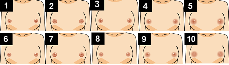 Nipples of different types Fittings: What